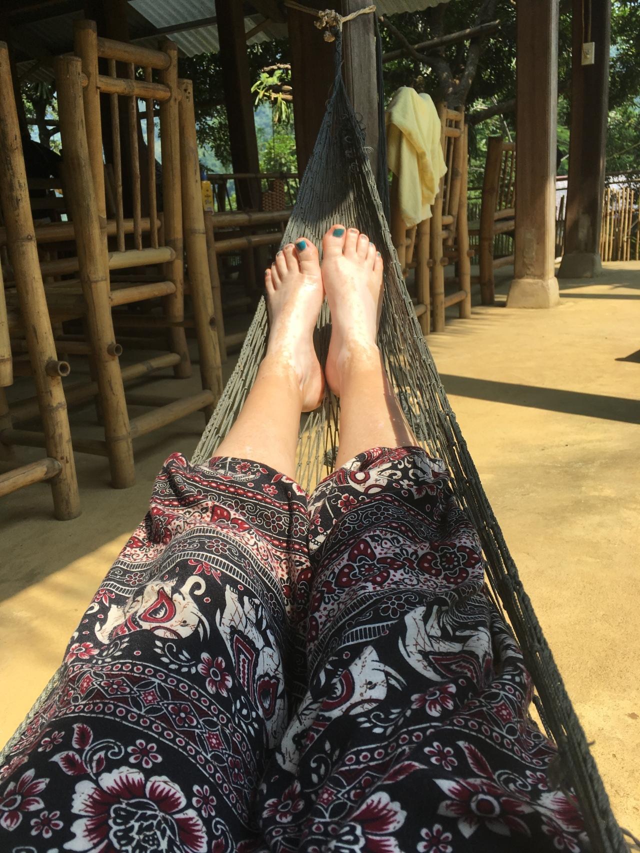 Hammock vitiligo feet